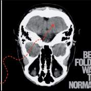 Обложка альбома Way to Normal, Музыкальный Портал α